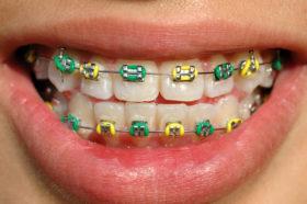 5 Tipuri de alimente pe care sa le eviti cand porti aparat dentar