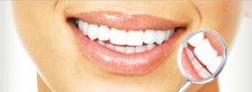 Pregatirea procesului de albire a dintilor